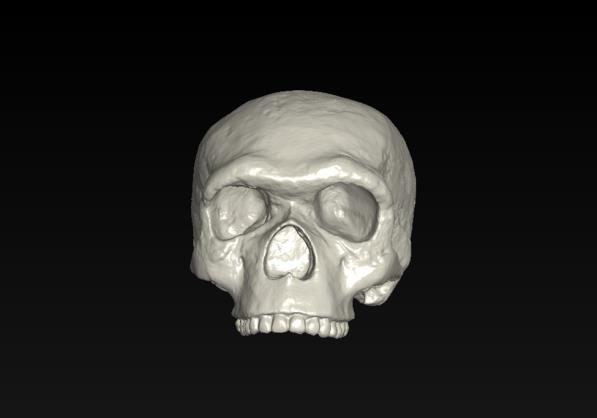 View of Homo heidelbergensis skull from the front.