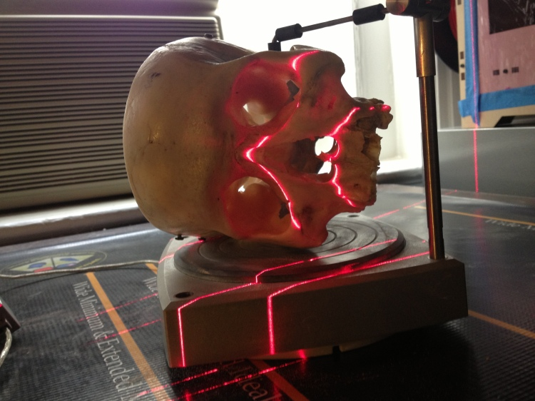 Scanning a human skull from the teaching collections of the Medical College of Virginia.